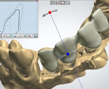 Протезирование зубов CAD/CAM