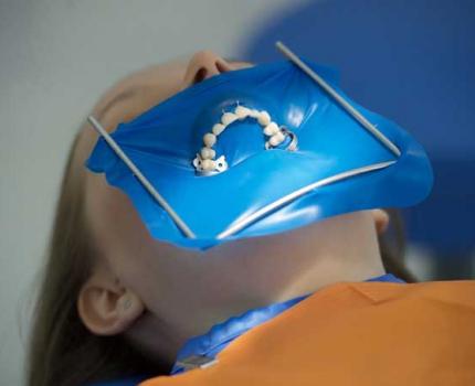 Изоляция зубов системой Раббердам